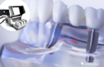 Biomaterials – man-made materials for regenerative medicine